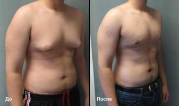 Гинекомастия До и После