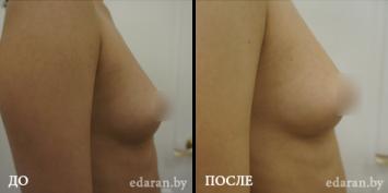 Липофилинг груди До и После