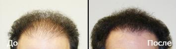 Пересадка волос у мужчин До и После