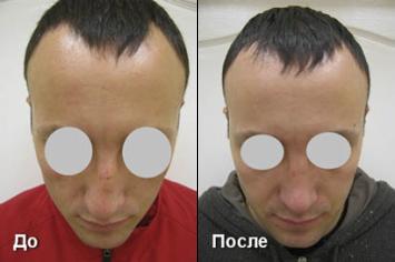 Пластика носа До и После