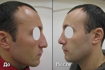Пластика носа До и После (вид сбоку)