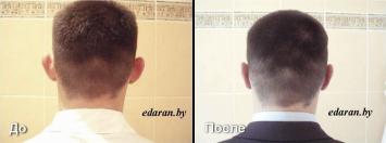 Пластика ушных раковин До и После