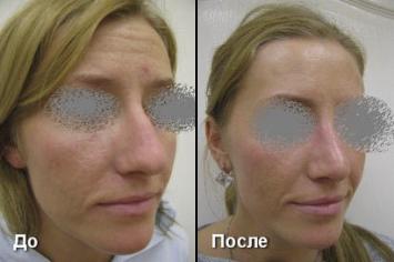 Ринопластика носа До и после