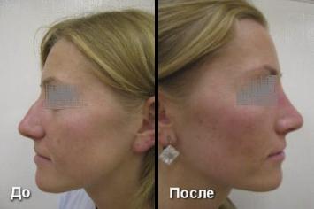 Ринопластика носа До и после (вид сбоку)