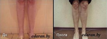 Увеличение объема голени До до и После