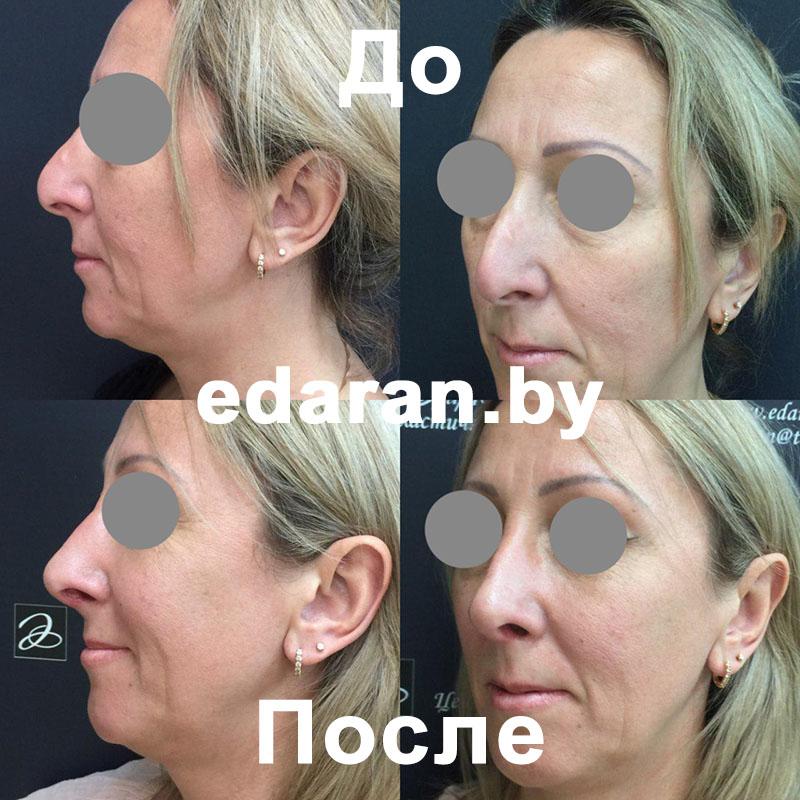 Ринопластика носа, исправление