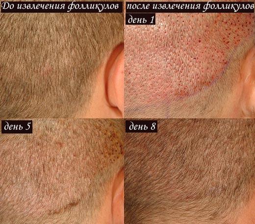 Процесс заживления после пересадки волос по времени