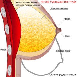 Редукционная маммопластика до уменьшения груди