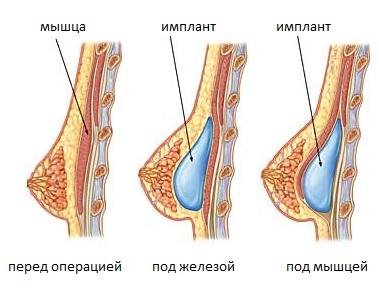 Способы установки грудного имплантата