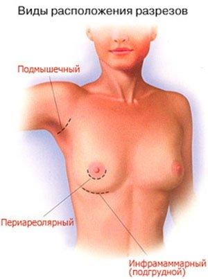 Выбор места разреза при увеличении груд