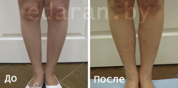 До и после Липофилинг голени