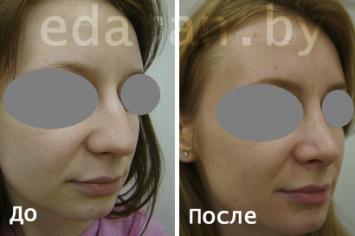 Пластика носа. Ринопластика
