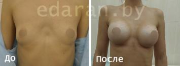 Увеличение груди (молочных желез)