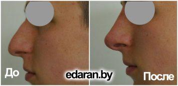 -коррекция носа с помощью филлеров