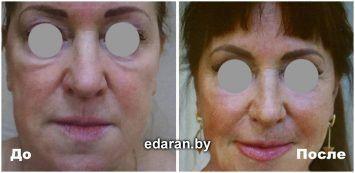 Минск ринопластика носа
