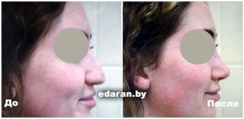 Ринопластика носа До и После (Минск)