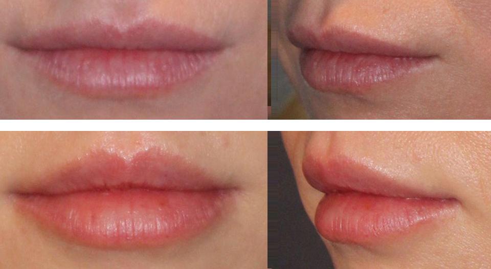 пластика губ
